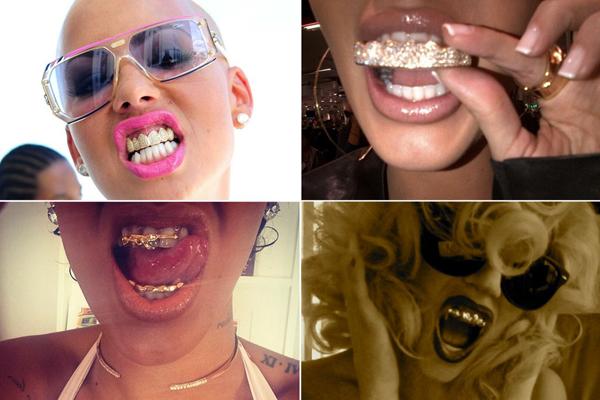 famosas con dientes de oro