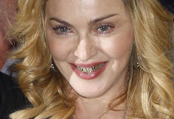 Grillz, dientes con oro y pedrería - estilos de vida ...