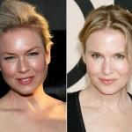 Las cirugías faciales de los famosos con sorpresa